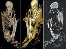 Scans and DNA Tests Reveal the Secrets of a Rare African Mummy