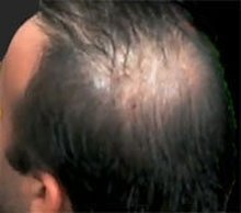 Male Pattern Baldness Tied to Prostate Cancer, Study Suggests