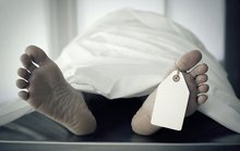 20 Things You Didn't Know About... Autopsies